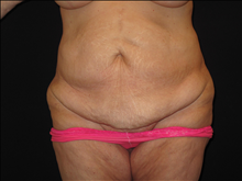 Tummy Tuck Before Photo by Jonathan Kramer, MD; Meridian, ID - Case 24948