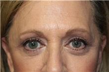 Eyelid Surgery After Photo by Scott Miller, MD; La Jolla, CA - Case 34178