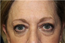 Eyelid Surgery Before Photo by Scott Miller, MD; La Jolla, CA - Case 34178