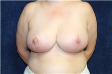 Breast Reduction After Photo by Scott Miller, MD; La Jolla, CA - Case 34179