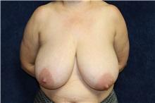 Breast Reduction Before Photo by Scott Miller, MD; La Jolla, CA - Case 34179