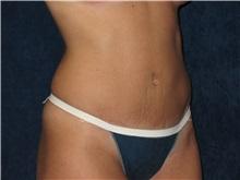 Tummy Tuck After Photo by Scott Miller, MD; La Jolla, CA - Case 34182