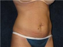 Tummy Tuck Before Photo by Scott Miller, MD; La Jolla, CA - Case 34182