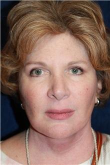 Facelift After Photo by Scott Miller, MD; La Jolla, CA - Case 34192
