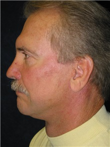 Facelift After Photo by Scott Miller, MD; La Jolla, CA - Case 8217