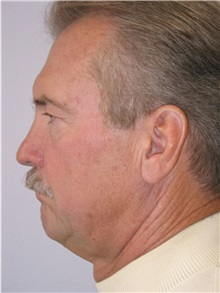 Facelift Before Photo by Scott Miller, MD; La Jolla, CA - Case 8217