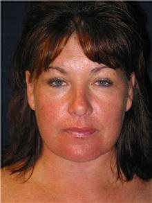 Facelift After Photo by Scott Miller, MD; La Jolla, CA - Case 8220