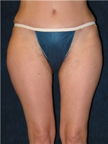 Liposuction After Photo by Scott Miller, MD; La Jolla, CA - Case 8224