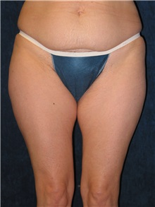 Liposuction Before Photo by Scott Miller, MD; La Jolla, CA - Case 8224