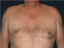 Male Breast Reduction After Photo by Scott Miller, MD; La Jolla, CA - Case 8227