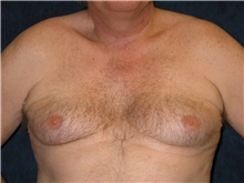 Male Breast Reduction Before Photo by Scott Miller, MD; La Jolla, CA - Case 8227