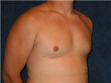 Male Breast Reduction After Photo by Scott Miller, MD; La Jolla, CA - Case 8228