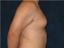 Male Breast Reduction Before Photo by Scott Miller, MD; La Jolla, CA - Case 8228