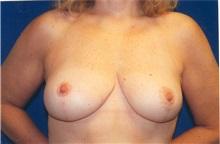 Breast Lift After Photo by Scott Miller, MD; La Jolla, CA - Case 8230