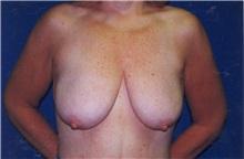 Breast Lift Before Photo by Scott Miller, MD; La Jolla, CA - Case 8230