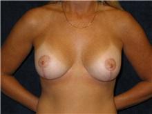 Breast Lift After Photo by Scott Miller, MD; La Jolla, CA - Case 8231