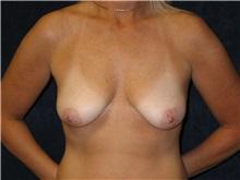 Breast Lift Before Photo by Scott Miller, MD; La Jolla, CA - Case 8231