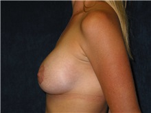 Breast Lift After Photo by Scott Miller, MD; La Jolla, CA - Case 8234
