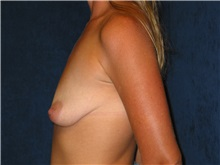 Breast Lift Before Photo by Scott Miller, MD; La Jolla, CA - Case 8234