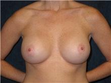 Breast Augmentation After Photo by Scott Miller, MD; La Jolla, CA - Case 8237