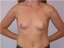 Breast Augmentation Before Photo by Scott Miller, MD; La Jolla, CA - Case 8237