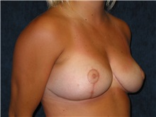 Breast Reduction After Photo by Scott Miller, MD; La Jolla, CA - Case 8238