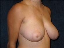 Breast Reduction Before Photo by Scott Miller, MD; La Jolla, CA - Case 8238