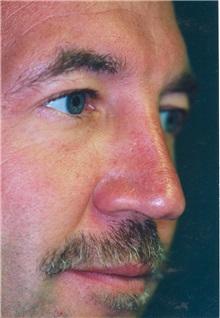 Rhinoplasty Before Photo by Scott Miller, MD; La Jolla, CA - Case 8241