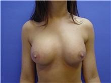 Breast Augmentation After Photo by Jennifer Walden, MD; Austin, TX - Case 7331