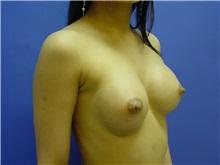 Breast Augmentation After Photo by Jennifer Walden, MD; Austin, TX - Case 7332