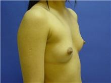 Breast Augmentation Before Photo by Jennifer Walden, MD; Austin, TX - Case 7332