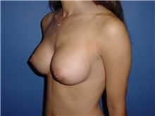 Breast Augmentation After Photo by Jennifer Walden, MD; Austin, TX - Case 7333