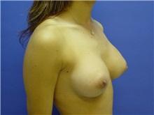 Breast Augmentation Before Photo by Jennifer Walden, MD; Austin, TX - Case 7333