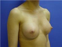 Breast Augmentation After Photo by Jennifer Walden, MD; Austin, TX - Case 7334