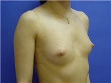 Breast Augmentation Before Photo by Jennifer Walden, MD; Austin, TX - Case 7334