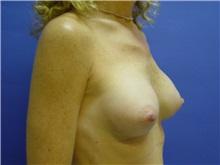 Breast Augmentation After Photo by Jennifer Walden, MD; Austin, TX - Case 7335