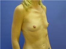 Breast Augmentation Before Photo by Jennifer Walden, MD; Austin, TX - Case 7335