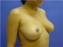 Breast Reduction After Photo by Jennifer Walden, MD; Austin, TX - Case 7336