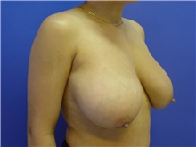Breast Reduction Before Photo by Jennifer Walden, MD; Austin, TX - Case 7336