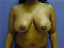 Breast Reduction After Photo by Jennifer Walden, MD; Austin, TX - Case 7337