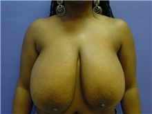 Breast Reduction Before Photo by Jennifer Walden, MD; Austin, TX - Case 7337