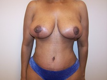 Tummy Tuck After Photo by Jeffrey Yager, MD; New York, NY - Case 42733