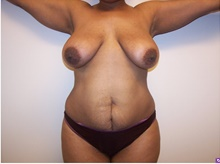 Tummy Tuck Before Photo by Jeffrey Yager, MD; New York, NY - Case 42733