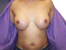 Breast Augmentation After Photo by Jeffrey Yager, MD; New York, NY - Case 42734