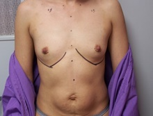 Breast Augmentation Before Photo by Jeffrey Yager, MD; New York, NY - Case 42734