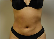 Liposuction After Photo by Jeffrey Yager, MD; New York, NY - Case 42737