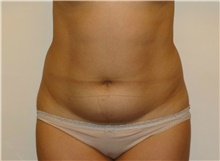 Liposuction Before Photo by Jeffrey Yager, MD; New York, NY - Case 42737