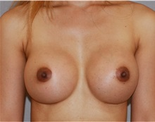 Breast Augmentation After Photo by Ramin Behmand, MD; Walnut Creek, CA - Case 31497