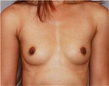 Breast Augmentation Before Photo by Ramin Behmand, MD; Walnut Creek, CA - Case 31497