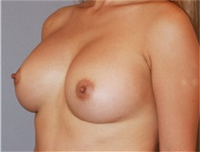 Breast Augmentation After Photo by Ramin Behmand, MD; Walnut Creek, CA - Case 31498